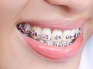 Routine Orthodontic Visit