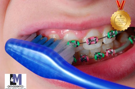 Brushing With Braces L&M Orthodontics