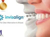 Invisalign Instructions