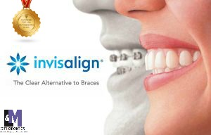 Adult Braces and Invisalign