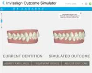 iTero Scanner at L&M Orthodontics