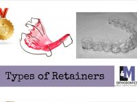 Types of Retainer