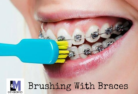 Proper Brushing with Braces