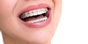 Type of Braces -Clear Braces