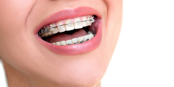 ARE YOU NEW TO BRACES AND ORTHODONTIC TREATMENT?