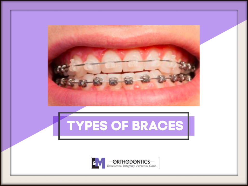 So Many Types of Braces – Which One Is Right For You?